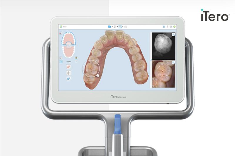 iTero Intra-Oral Cameras in